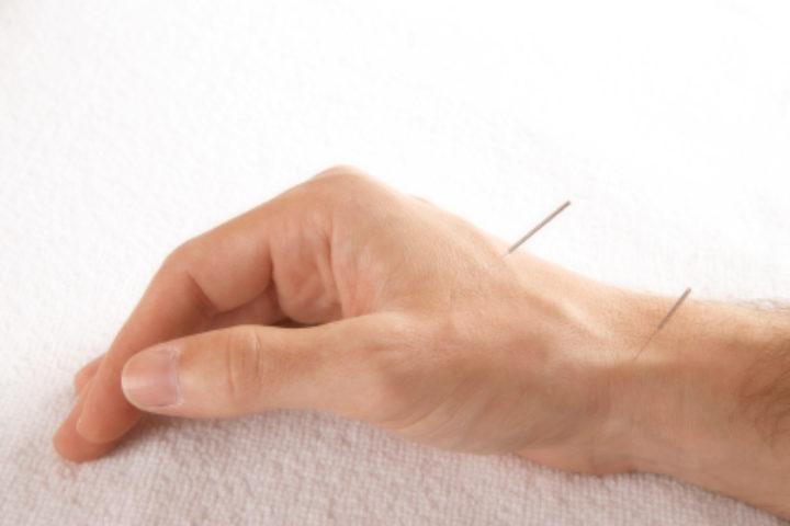 Jeg har tette/blokkerte eggledere. Kan akupunktur hjelpe meg med å bli gravid?