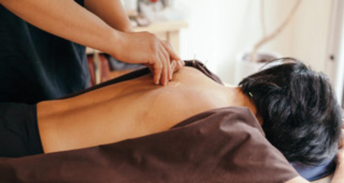 Akupunktur før egguttak og innsetting