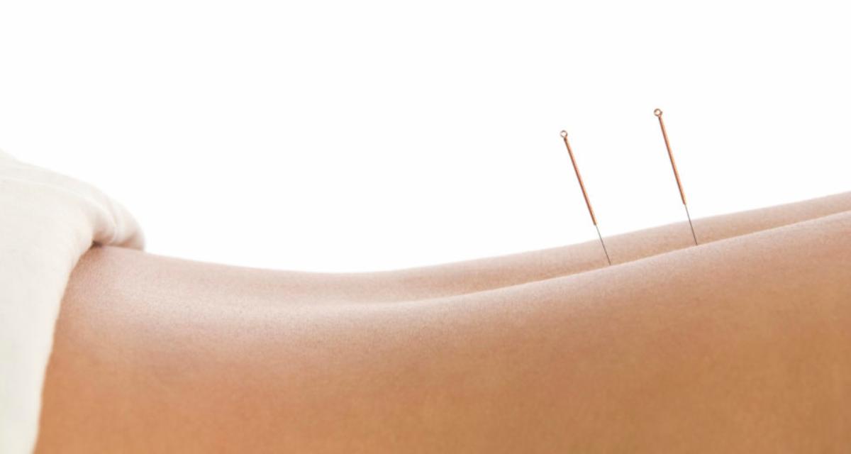akupunktur bli gravid