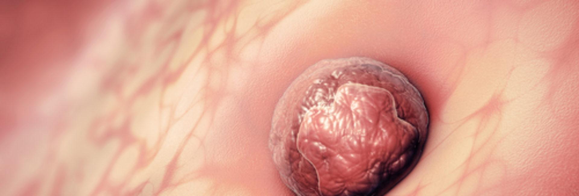 Embryo fester seg til livmorslimhinnen