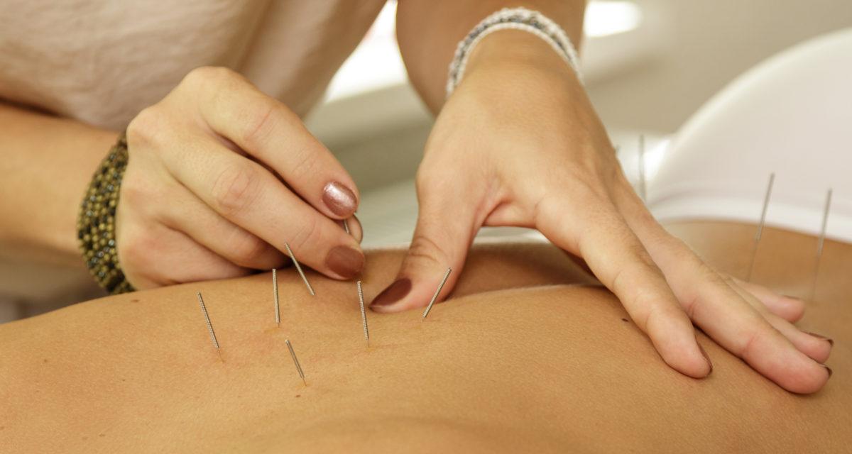 Hva er forklaringen ved akupunktur
